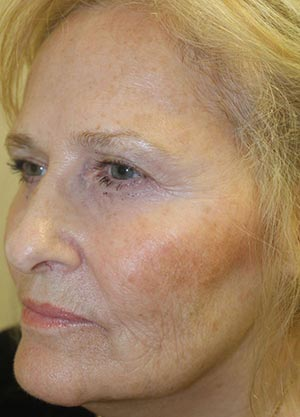 Vampire Facelift 1 - After Treatment