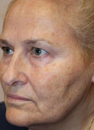 Vampire Facelift 1 - Before Treatment