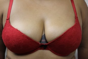 Vampire Breast Lift 1 - After Treatment