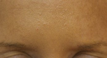 Botox 2 - After Treatment