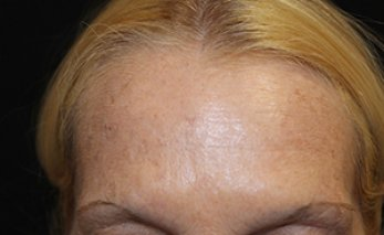 Botox 3 - After Treatment