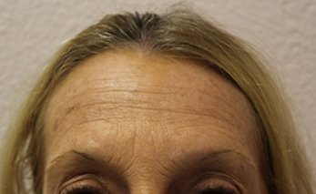Botox 3 - Before Treatment