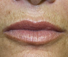 Lip Augmentation 1 - After Treatment