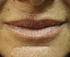 Lip Augmentation 1 - Before Treatment