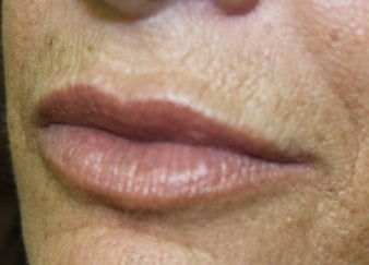 Lip Augmentation 2 - After Treatment