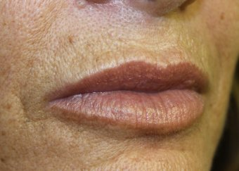 Lip Augmentation 3 - After Treatment