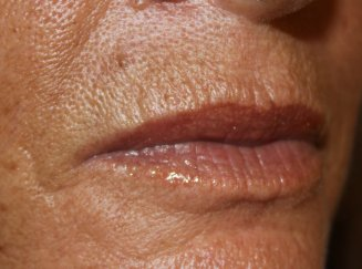 Lip Augmentation 3 - Before Treatment