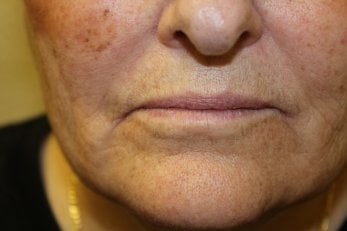 Vampire Facelift 2 - After Treatment