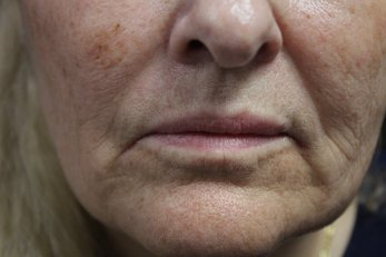 Vampire Facelift 2 - Before Treatment