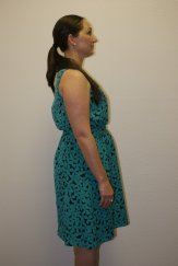 Weight Loss 2 - Before Treatment